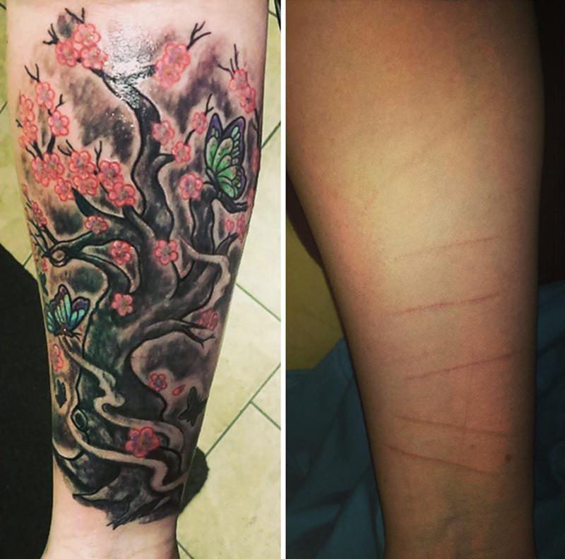30 ideia criativas de tatuagem para embelezar qualquer cicatriz 16