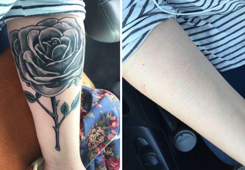 30 ideia criativas de tatuagem para embelezar qualquer cicatriz 18
