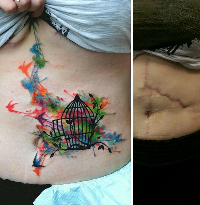30 ideia criativas de tatuagem para embelezar qualquer cicatriz 28